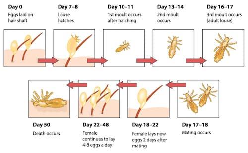 Kid's Lice – Can My Hair Straightener Kill It